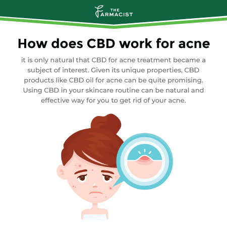How does CBD work for acne